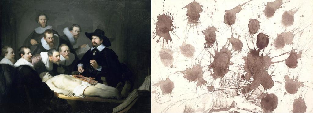 A gauche, l'original de La leçon d'anatomie de Rembrandt (1632), A droite, La leçon d'Anatomie de Dali peint en 1965